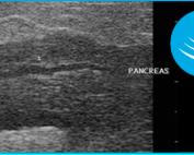 Ultrasounding the Feline Pancreas